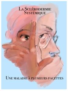 Titre BD Sclérodermie Systémique